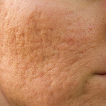 Treating Acne Scars: How Long Does It Take?