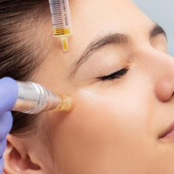 What Does Microneedling Do for Your Skin?